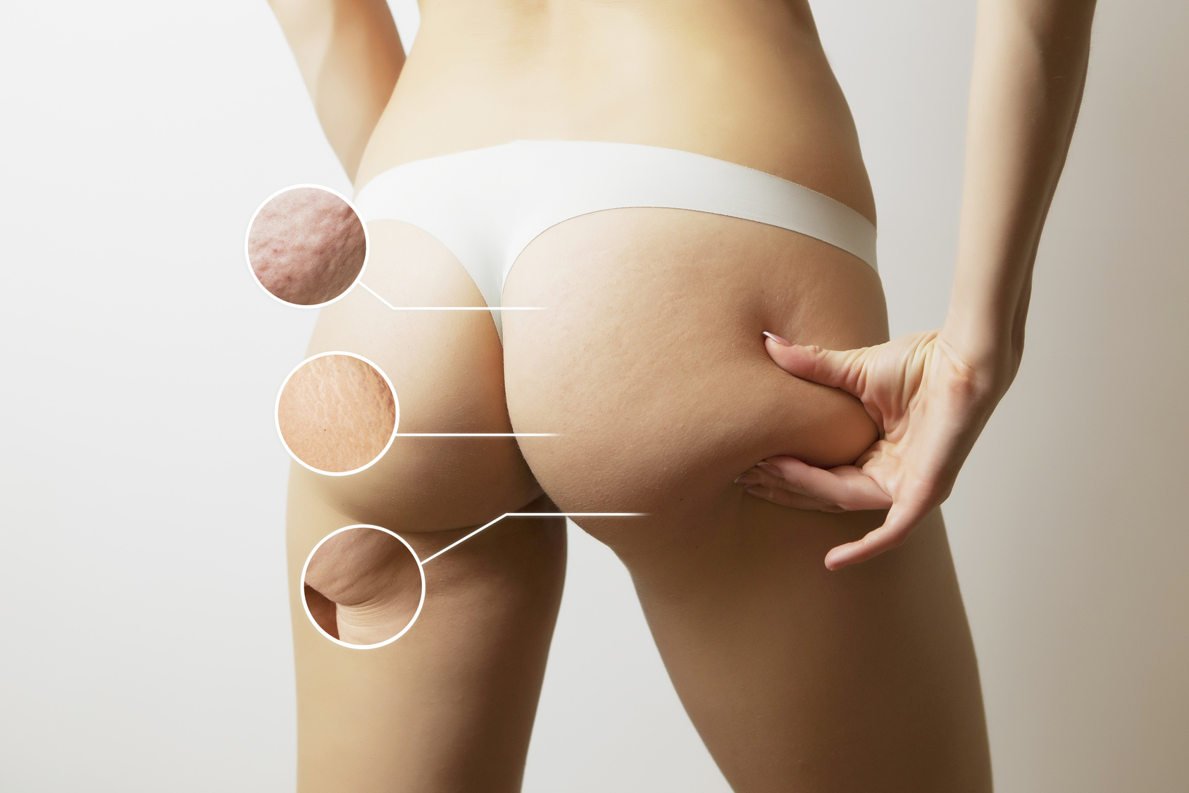suplementy na cellulit